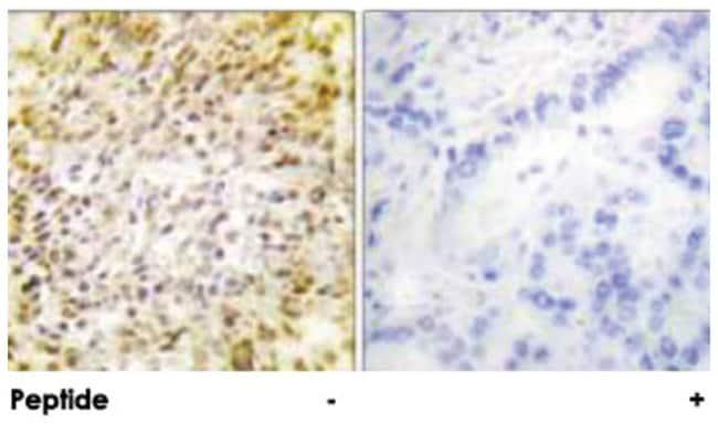 CCNH, Rabbit, Polyclonal Antibody, Abnova 100µg; Unlabeled:Life Sciences
