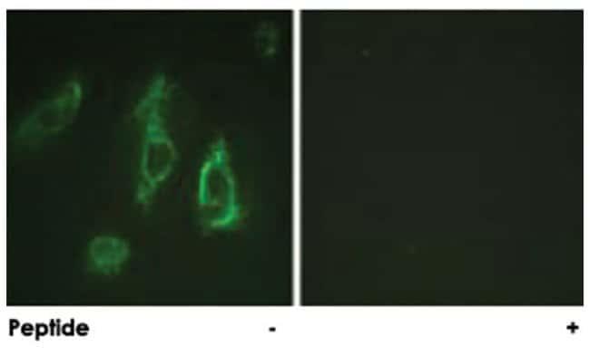 EPOR, Rabbit, Polyclonal Antibody, Abnova 100µg; Unlabeled:Life Sciences