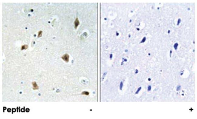 CDKN1B Rabbit anti-Human, Polyclonal Antibody, Abnova 100µg; Unlabeled:Life