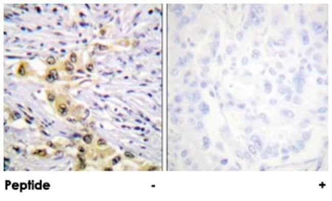 IGF2R Rabbit anti-Human, Mouse, Rat, Polyclonal Antibody, Abnova 100µg;