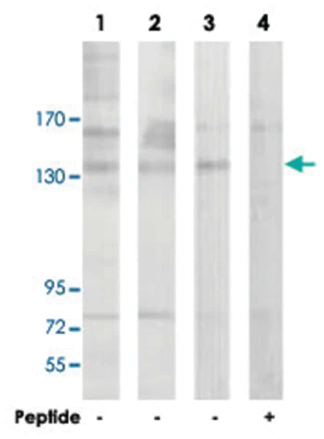 NOS3 Rabbit anti-Human, Mouse, Rat, Polyclonal Antibody, Abnova 100µg;