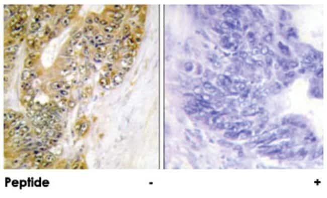 MDM2 Rabbit anti-Human, Polyclonal Antibody, Abnova 100µg; Unlabeled:Life