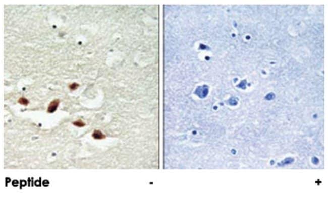 PDCD4 Rabbit anti-Human, Mouse, Rat, Polyclonal Antibody, Abnova 100µg;