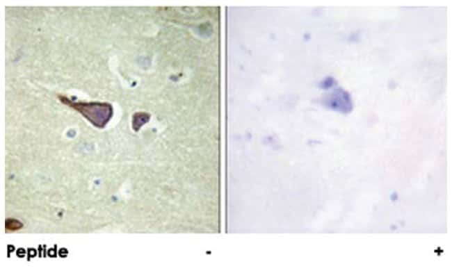 IGF2R Rabbit anti-Human, Mouse, Polyclonal Antibody, Abnova 100µg;
