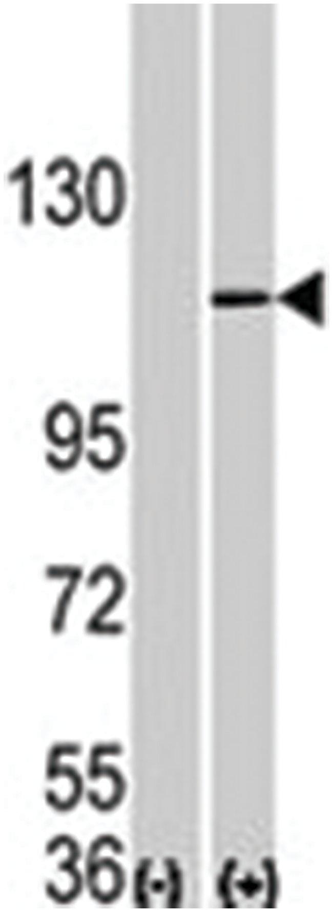 Aof 2 Rabbit anti-Human, Polyclonal Antibody, Abnova 400µL; Unlabeled:Life