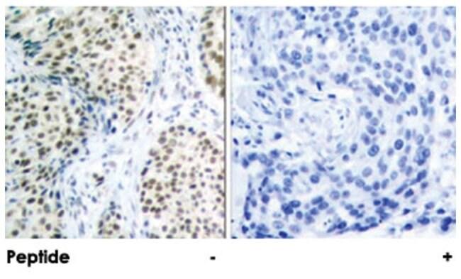 ATM Rabbit anti-Human, Mouse, Polyclonal Antibody, Abnova 100µg; Unlabeled:Life