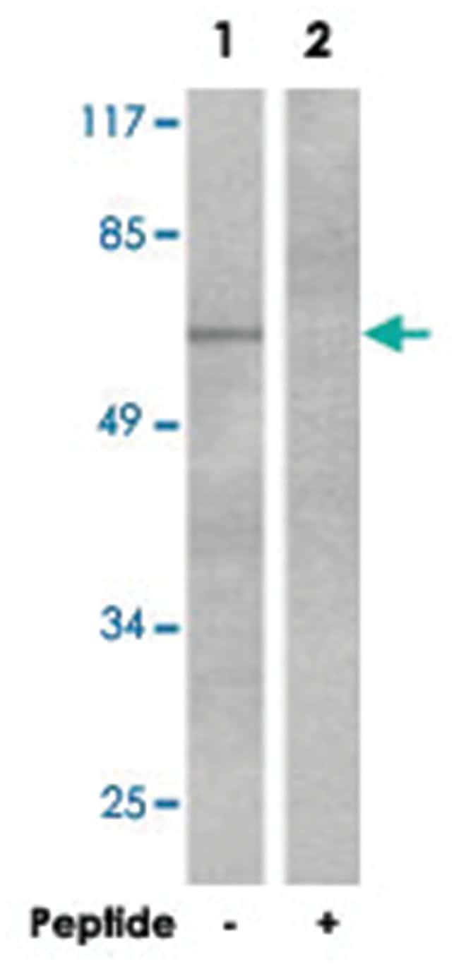 Cttn Rabbit anti-Mouse, Rat, Polyclonal Antibody, Abnova 100µg; Unlabeled:Life