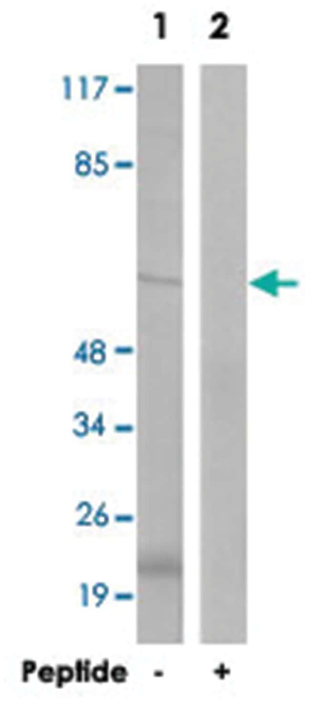 DAB1 Rabbit anti-Human, Mouse, Rat, Polyclonal Antibody, Abnova 100µg;