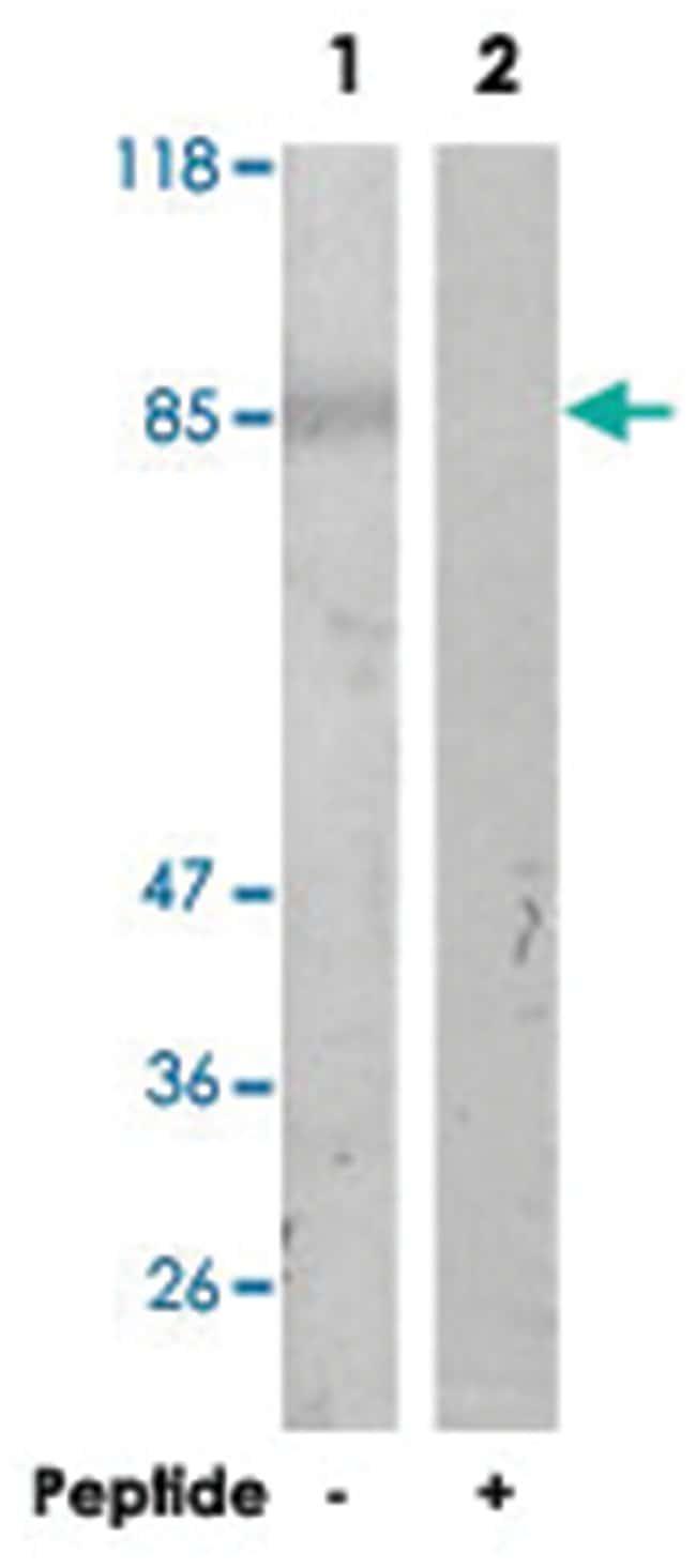 ITGB3 Rabbit anti-Human, Mouse, Polyclonal Antibody, Abnova 100µg;