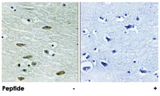 IGF1R Rabbit anti-Human, Mouse, Rat, Polyclonal Antibody, Abnova 100µg;