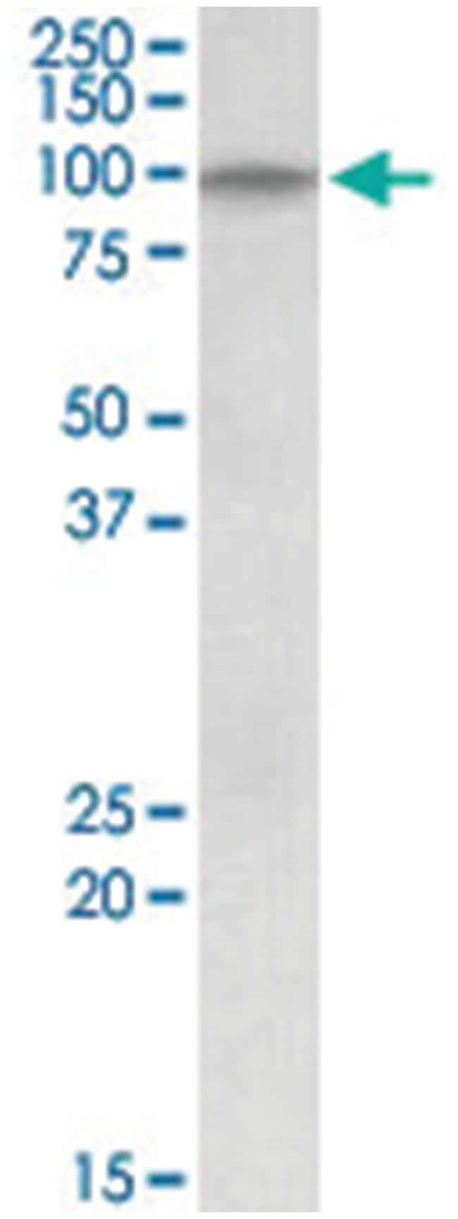DAG1, Goat, Polyclonal Antibody, Abnova 100µg; Unlabeled:Life Sciences