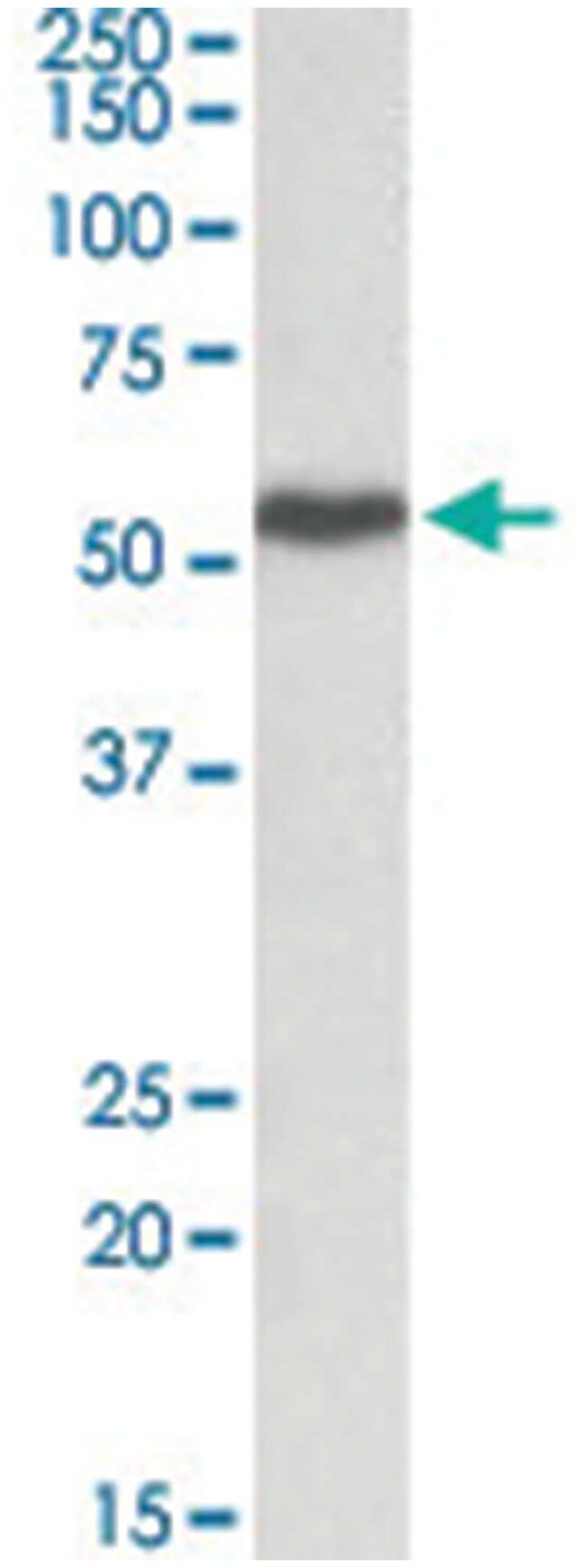 LSP1 Goat anti-Human, Polyclonal Antibody, Abnova 100µg; Unlabeled:Life