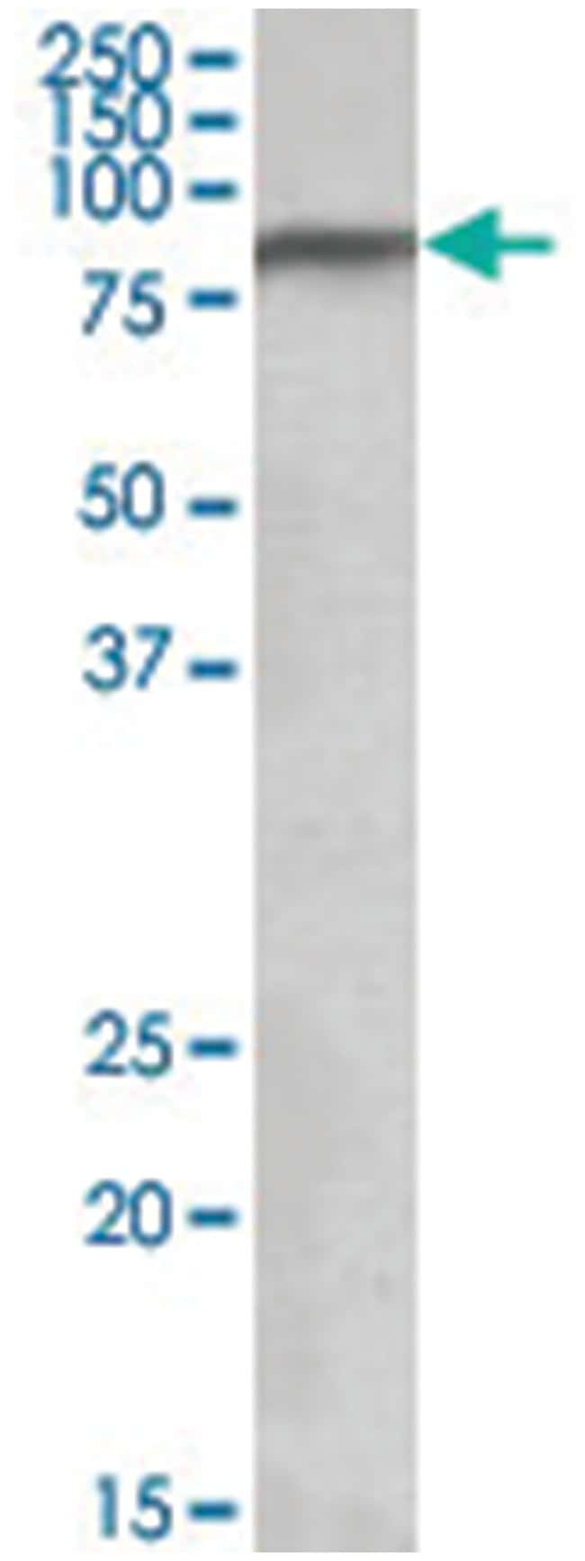 NDUFS1, Goat, Polyclonal Antibody, Abnova 100µg; Unlabeled:Life Sciences