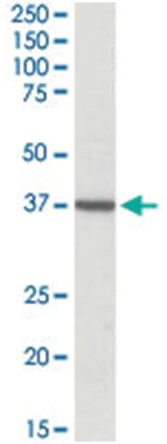 TOMM40, Goat, Polyclonal Antibody, Abnova 100µg; Unlabeled:Life Sciences