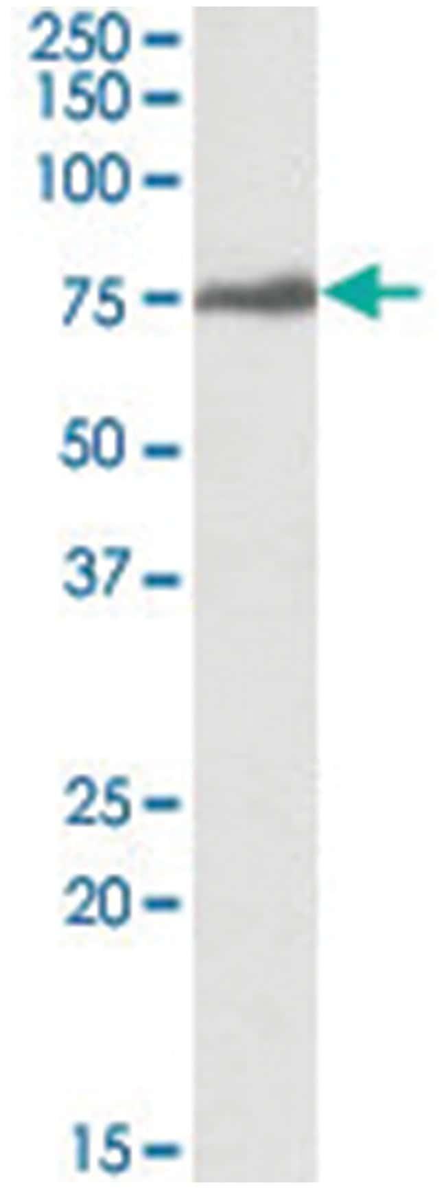 RSL1D1, Goat, Polyclonal Antibody, Abnova 100µg; Unlabeled:Life Sciences