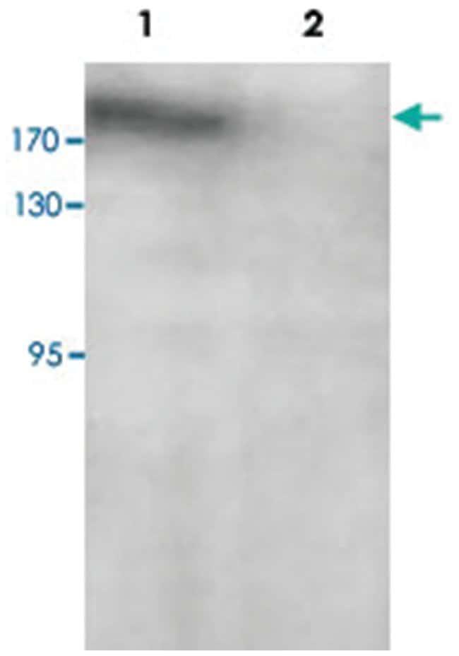 PARP14 Rabbit anti-Human, Polyclonal Antibody, Abnova 100µg; Unlabeled:Life