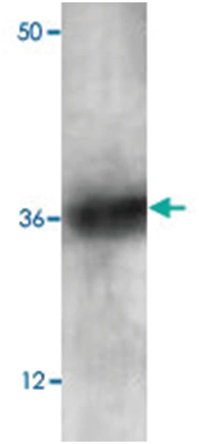 PAWR Rabbit anti-Human, Polyclonal Antibody, Abnova 100µg; Unlabeled:Life