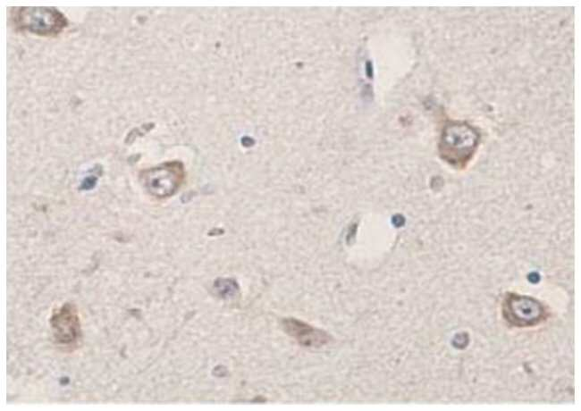RIPK2 Rabbit anti-Human, Polyclonal Antibody, Abnova 100µg; Unlabeled:Life