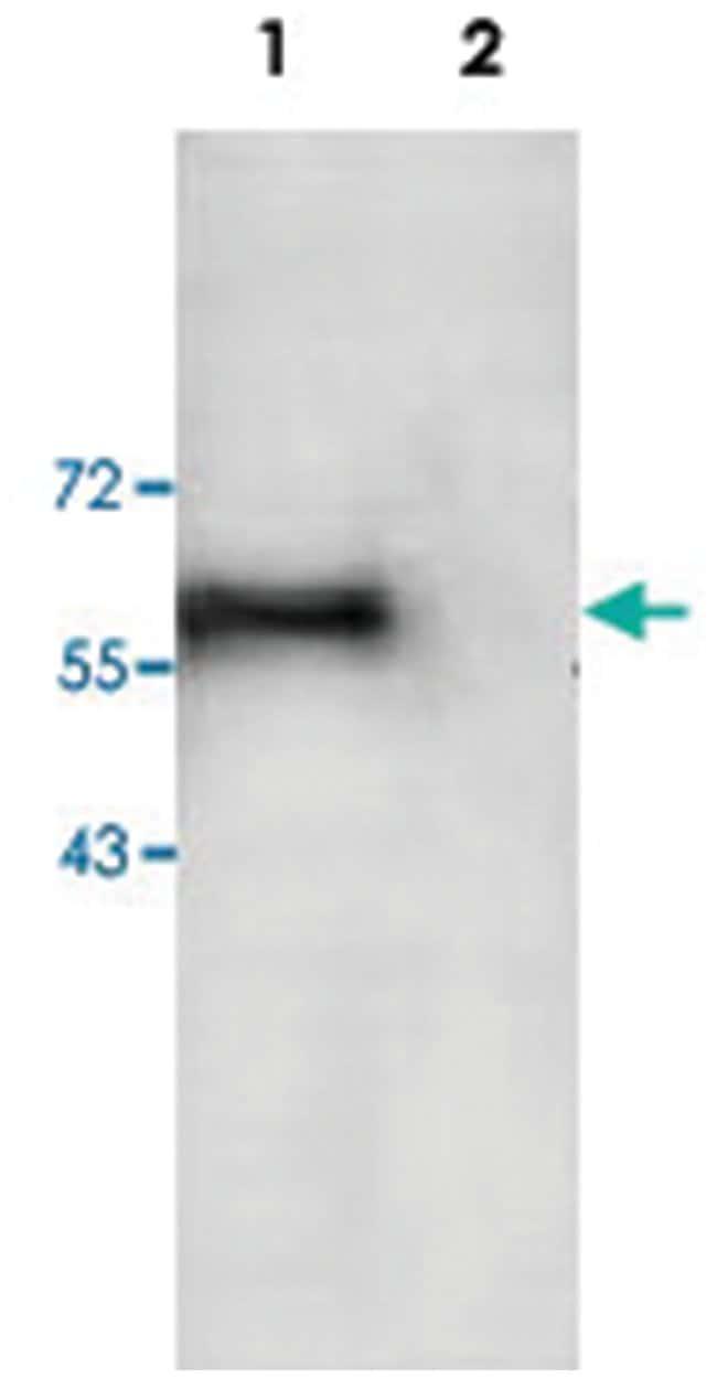 TNFRSF10A Rabbit anti-Chimpanzee, Human, Polyclonal Antibody, Abnova 100µg;