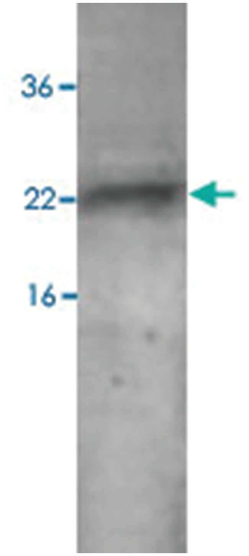 CNTF Rabbit anti-Human, Polyclonal Antibody, Abnova 100µg; Unlabeled:Life