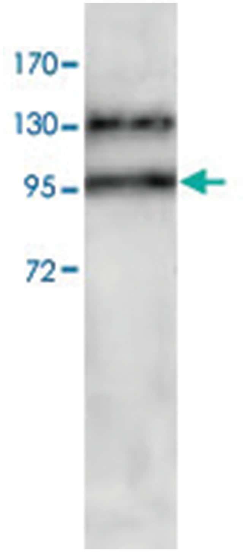 ADAM17 Rabbit anti-Human, Polyclonal Antibody, Abnova 100µg; Unlabeled:Life