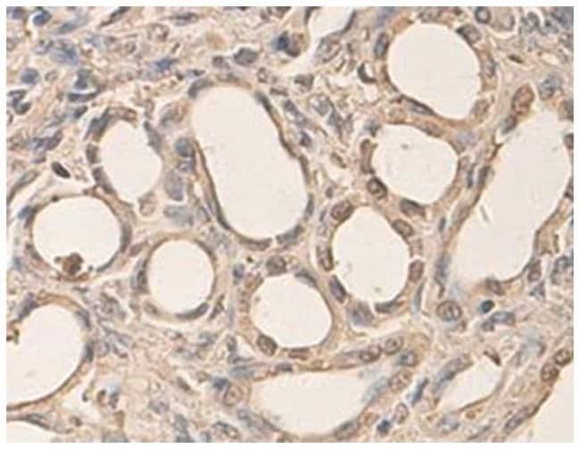 AHR Rabbit anti-Human, Polyclonal Antibody, Abnova 100µg; Unlabeled:Life