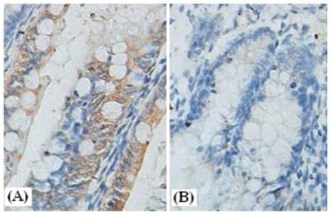 CTNNB1 Rabbit anti-Human, Mouse, Rat, Polyclonal Antibody, Abnova 100µg;