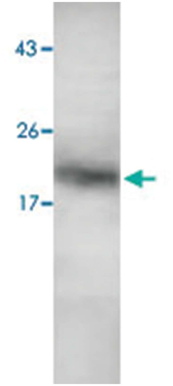 S100P Rabbit anti-Human, Polyclonal Antibody, Abnova 100µg; Unlabeled:Life