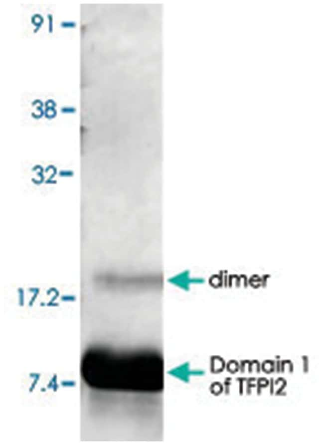 TFPI2 Rabbit anti-Human, Polyclonal Antibody, Abnova 100µg; Unlabeled:Life