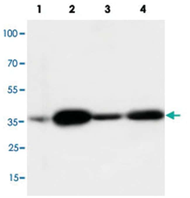 ANXA2 Rabbit anti-Human, Mouse, Rat, Polyclonal Antibody, Abnova 100µg;
