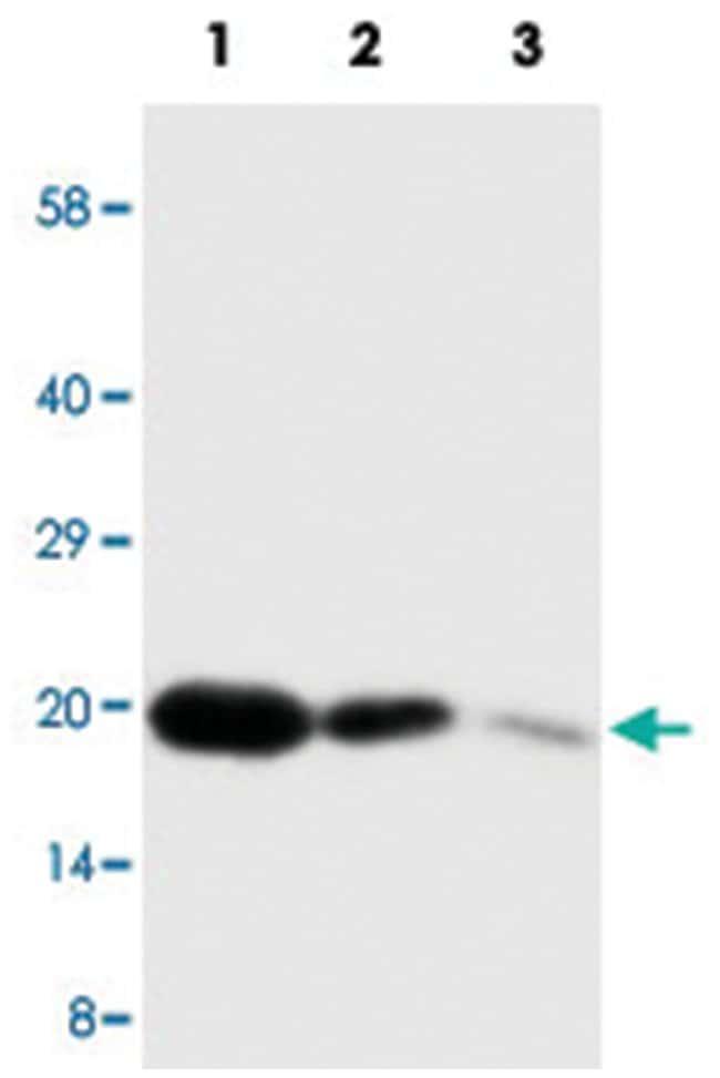 FGF7 Rabbit anti-Human, Polyclonal Antibody, Abnova 100µg; Unlabeled:Life