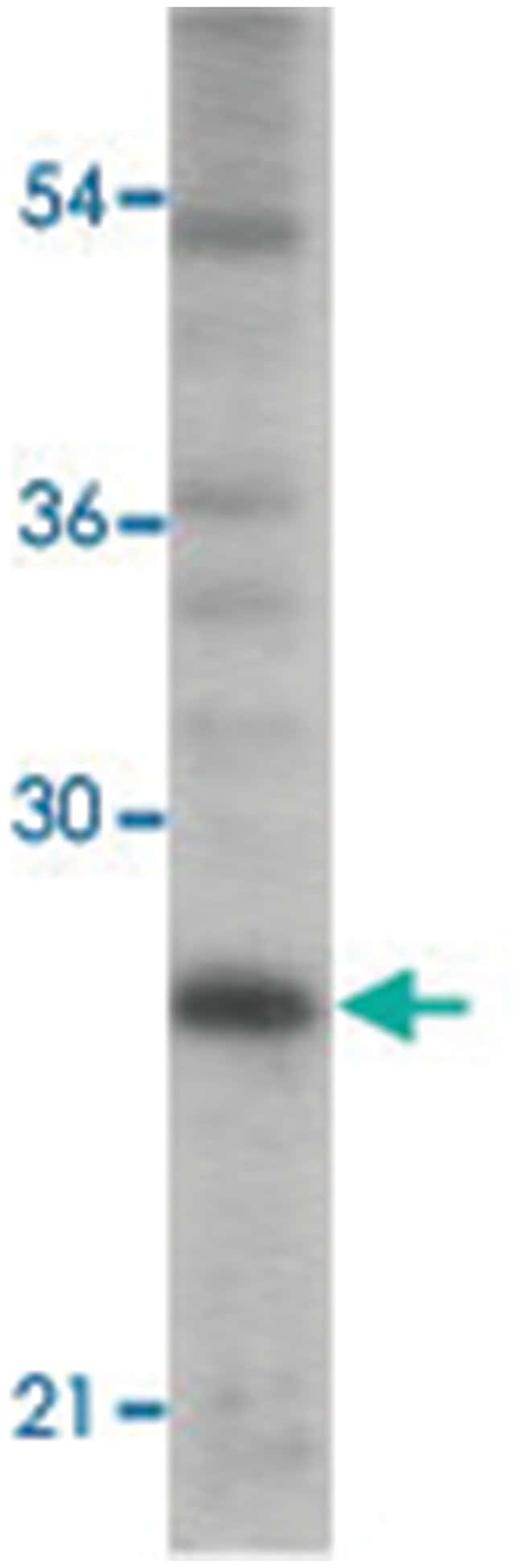 TICAM2 Rabbit anti-Human, Polyclonal Antibody, Abnova 100µg; Unlabeled:Life