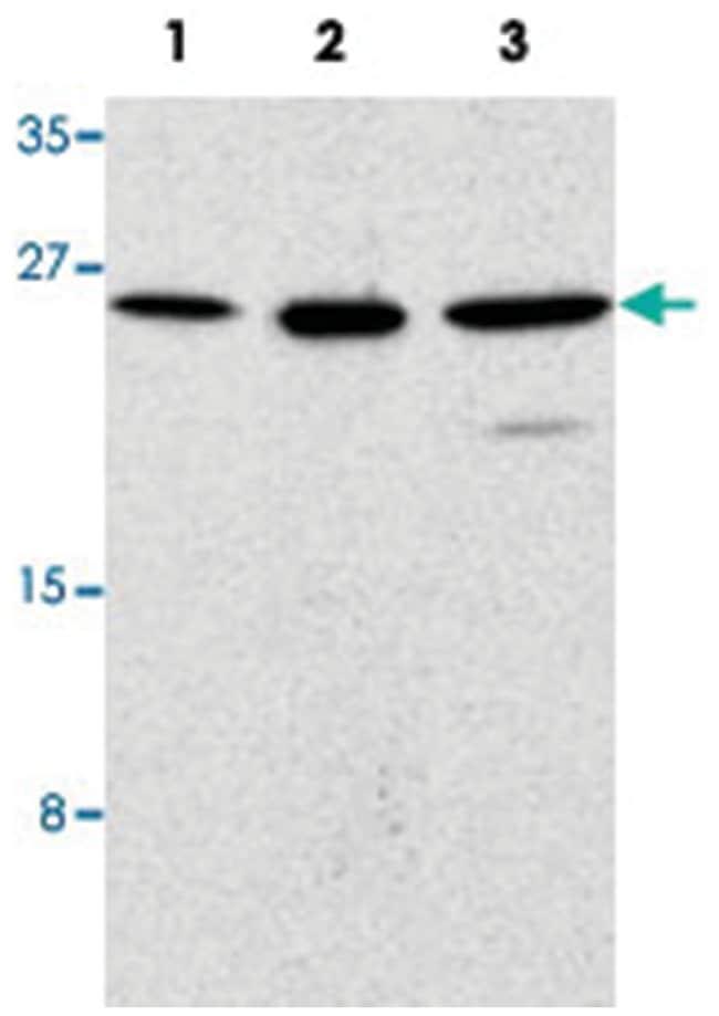 TICAM2 Rabbit anti-Human, Mouse, Rat, Polyclonal Antibody, Abnova 100µg;