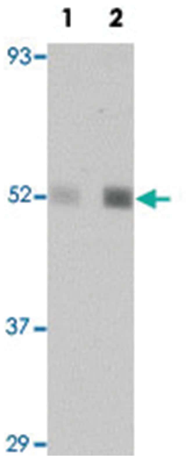 NR1H2 Rabbit anti-Human, Mouse, Rat, Polyclonal Antibody, Abnova 100µg;