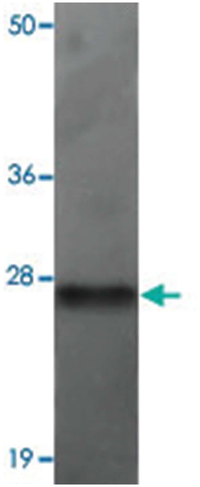 TMEM70, Rabbit, Polyclonal Antibody, Abnova 100µg; Unlabeled:Life
