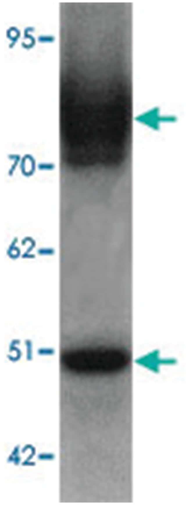 SLC39A6 Rabbit anti-Human, Mouse, Polyclonal Antibody, Abnova 100µg;