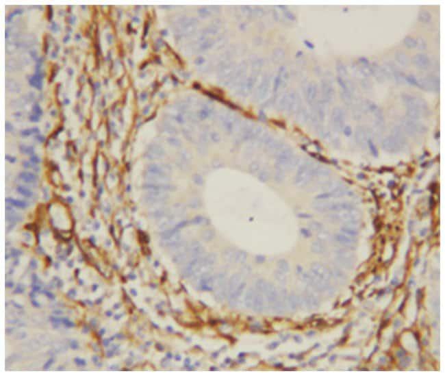 LGALS1 Rabbit anti-Human, Polyclonal Antibody, Abnova 100µg; Unlabeled:Life