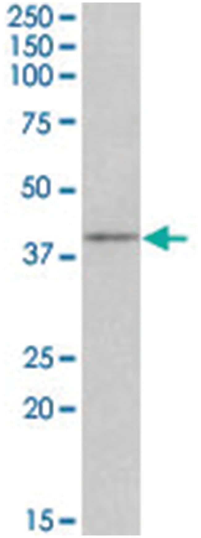 Cd28, Goat, Polyclonal Antibody, Abnova 100μg; Unlabeled:Antibodies