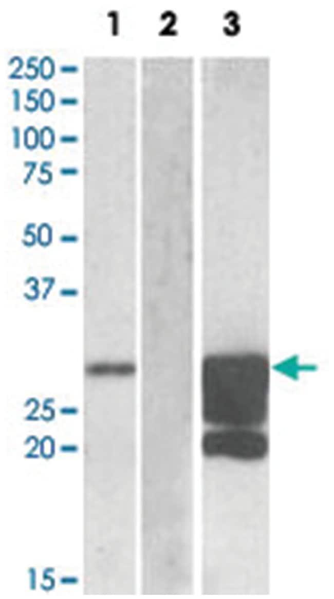 GM2A Goat anti-Human, Polyclonal Antibody, Abnova 100μg; Unlabeled:Antibodies