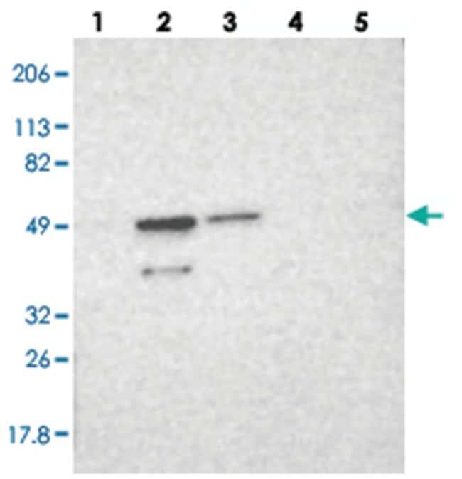 HNRNPH2 Rabbit anti-Human, Polyclonal Antibody, Abnova 100µL; Unlabeled:Life