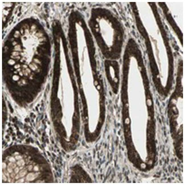 MYOM2 Rabbit anti-Human, Polyclonal Antibody, Abnova 100µL; Unlabeled:Life