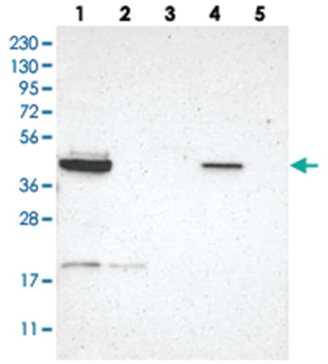 GRAMD3 Rabbit anti-Human, Polyclonal Antibody, Abnova 100µL; Unlabeled:Life