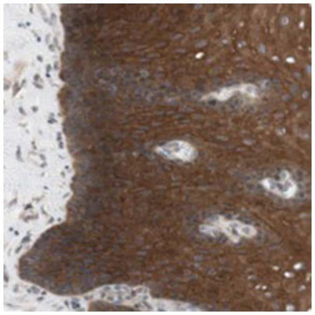 CCDC67, Rabbit, Polyclonal Antibody, Abnova 100µL; Unlabeled:Life