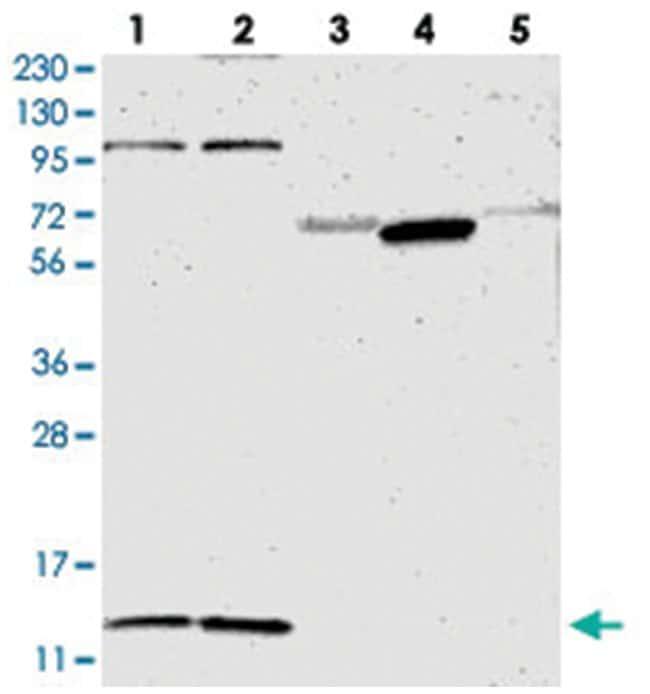 MRPL52, Rabbit, Polyclonal Antibody, Abnova 100μL; Unlabeled:Antibodies