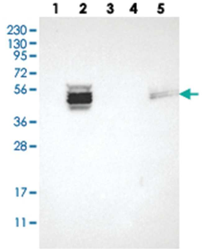 ZDHHC6, Rabbit, Polyclonal Antibody, Abnova 100µL; Unlabeled:Life