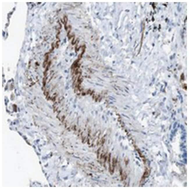 APOBEC4 Rabbit anti-Human, Polyclonal Antibody, Abnova 100µL; Unlabeled:Life