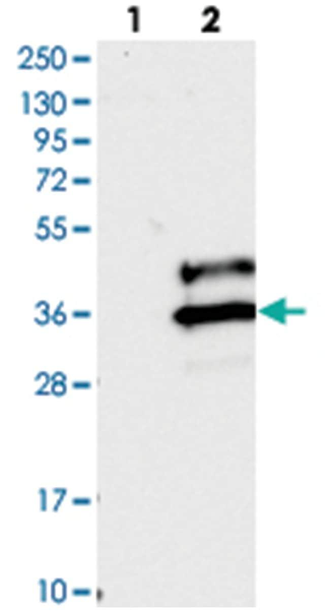 VSTM2A Rabbit anti-Human, Polyclonal Antibody, Abnova 100μL; Unlabeled:Antibodies