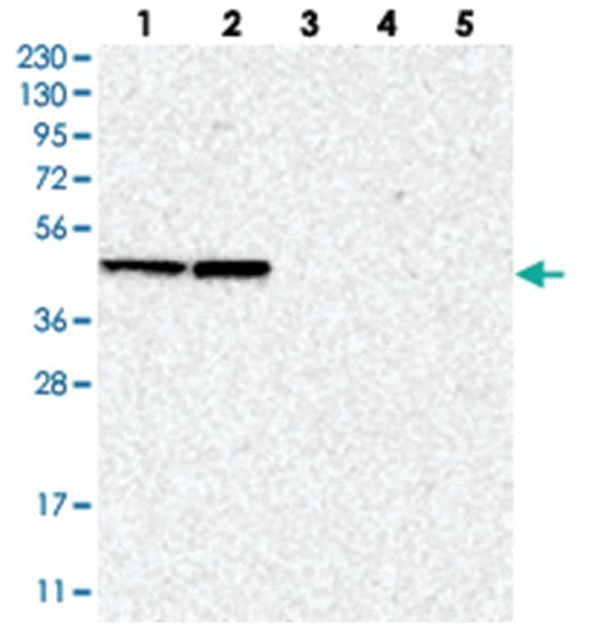 BXDC5, Rabbit, Polyclonal Antibody, Abnova 100µL; Unlabeled:Life Sciences