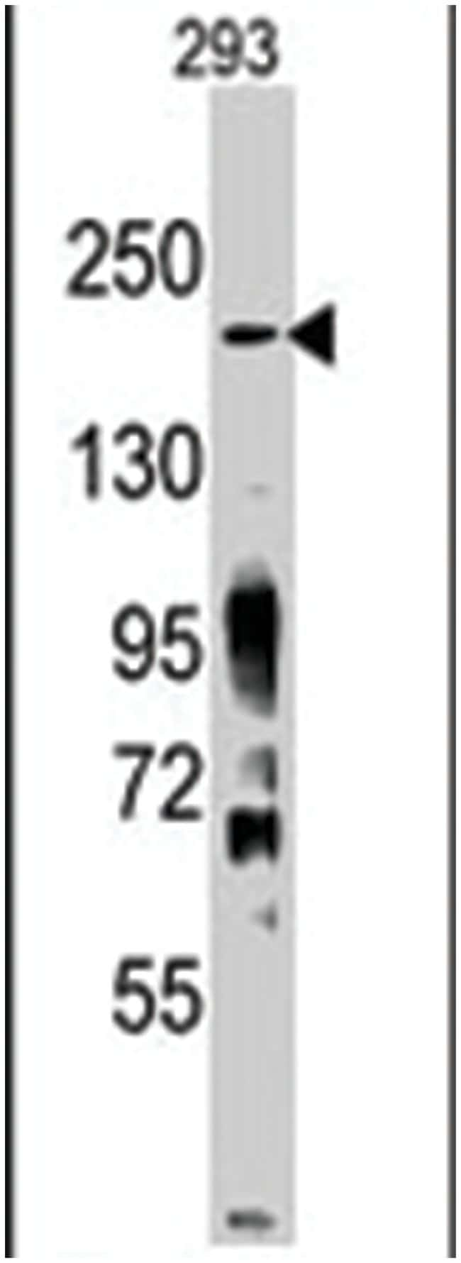 Jmjd3 Rabbit anti-Human, Mouse, Polyclonal Antibody, Abnova 400µL;