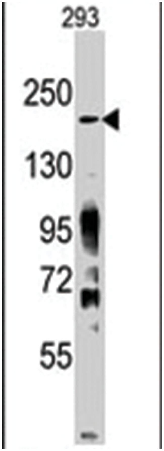 Jmjd3 Rabbit anti-Human, Mouse, Polyclonal Antibody, Abnova 400μL; Unlabeled:Antibodies